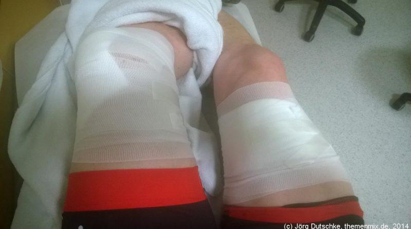 Verbundene Beine nach Fahrrad-Crash.
